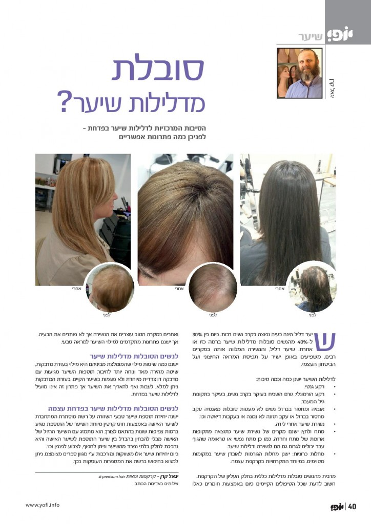 סיבות ופתרונות לדלילות שיער, מאמר, מגזין יופי